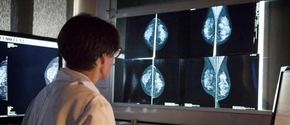 Breast cancer survival rates higher thanks to 'special' immune cell © Getty Images