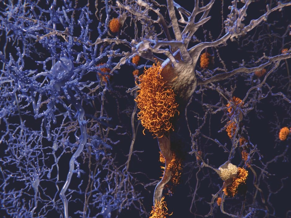 Characteristic protein 'plaques', visualised here in orange, can be seen in an Alzheimer's brain © Getty Images