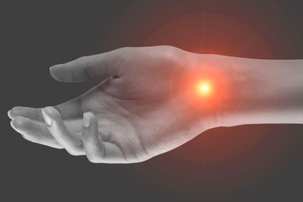 Carpal tunnel syndrome © Getty Images