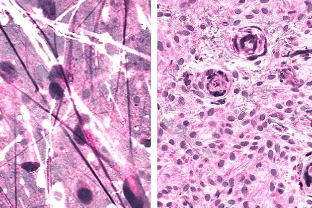 Stimulated Raman histologic images of diffuse astrocytoma (left) and meningioma (right) © Daniel Orringer, NYU Langone Health