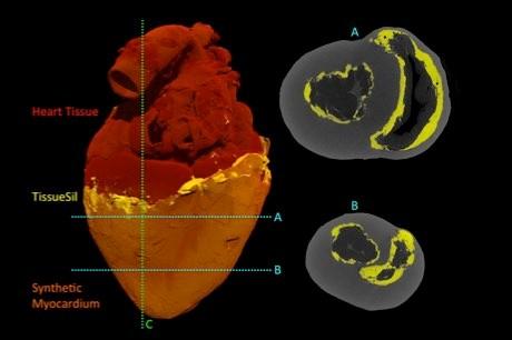 Robotic hybrid heart beats like a real organ © Park et al./Sci Robotics