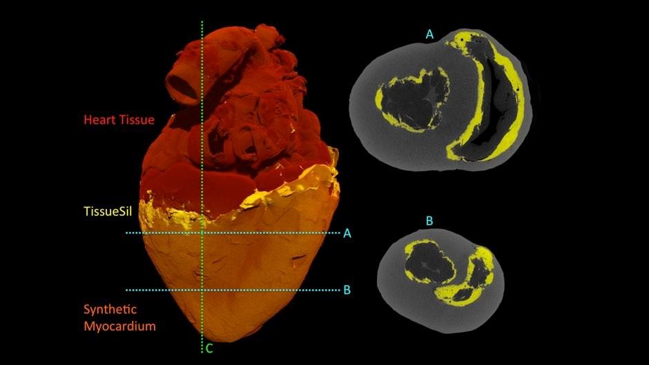 CT scans of the biohybrid heart © Park et al./Sci Robotics