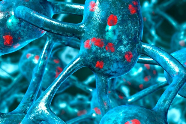 Newly-identified gene may help fight dementia risk in Parkinson's, mice study shows © Getty Images