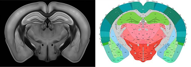 A virtual section of the 3D mouse brain atlas © Allen Institute for Brain Science