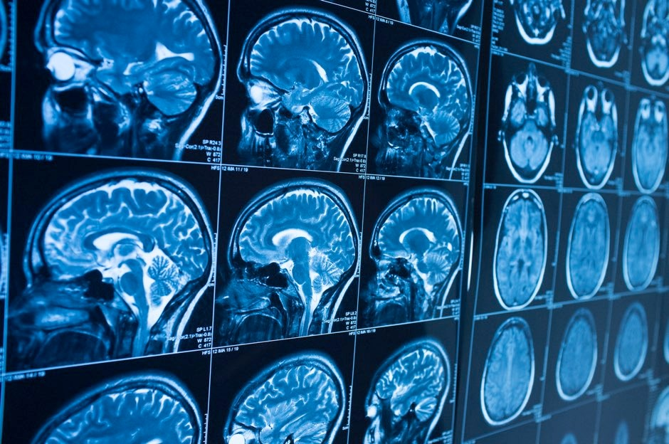 Huntington's disease can be detected in the brain 24 years before symptoms show