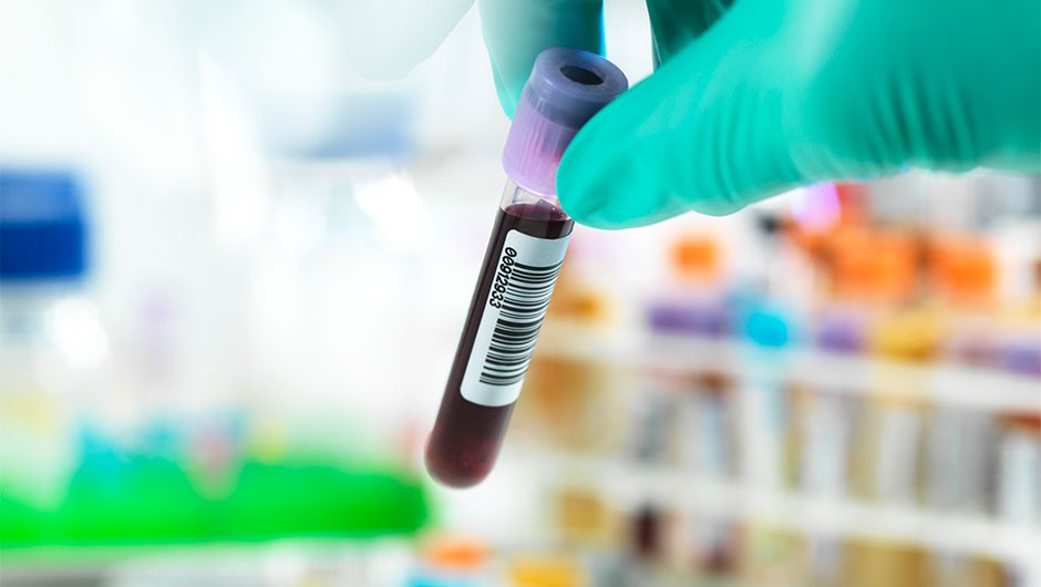 Blood test detects cancer up to four years before symptoms show