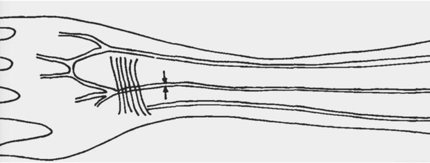 Sketch of the median arterial vessel that supplies blood to the human forearm and hand © Professor Maciej Henneberg