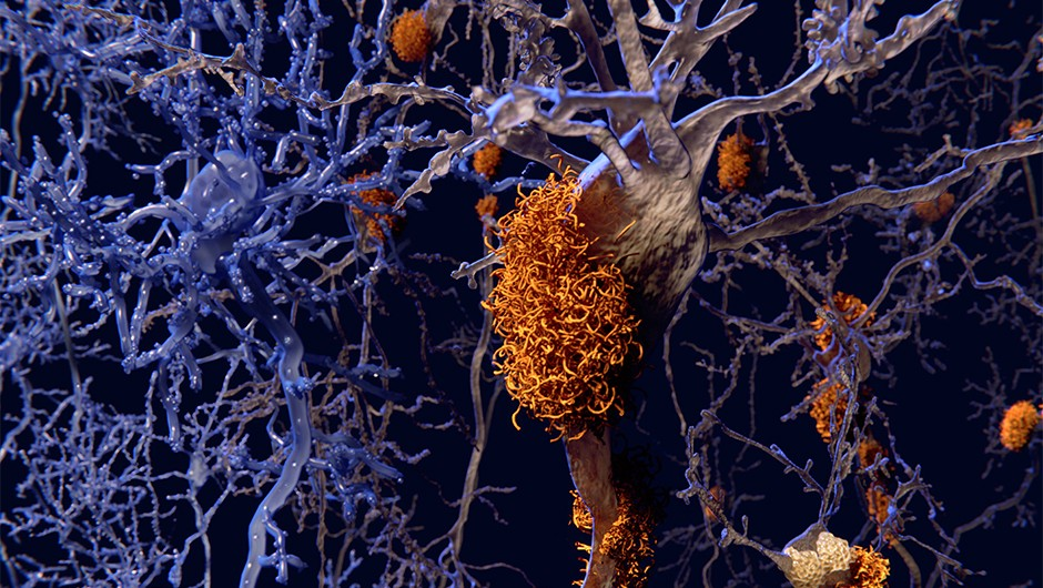 Alzheimer's: Scientists discover 'profound influence' of immune cells on disease progression