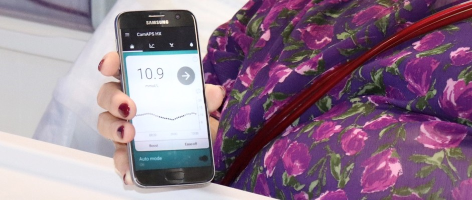 Artificial pancreas helps patients with type 2 diabetes manage blood sugar levels © University of Cambridge