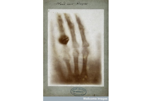 X-ray of the bones of a hand with a ring on one finger. (Picture by Wellcome Library, London)
