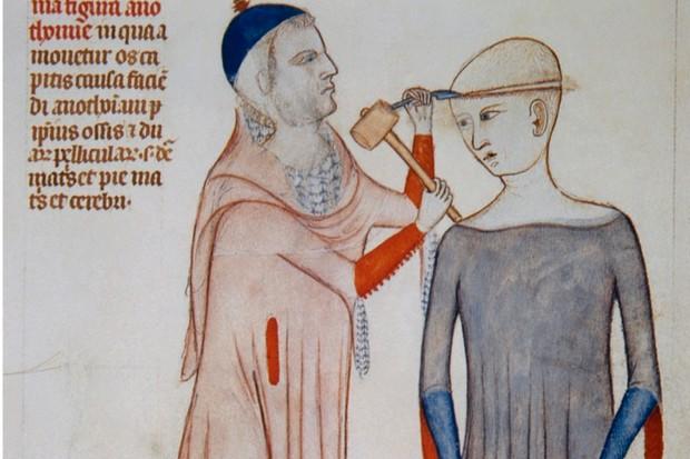 Medieval trepanning