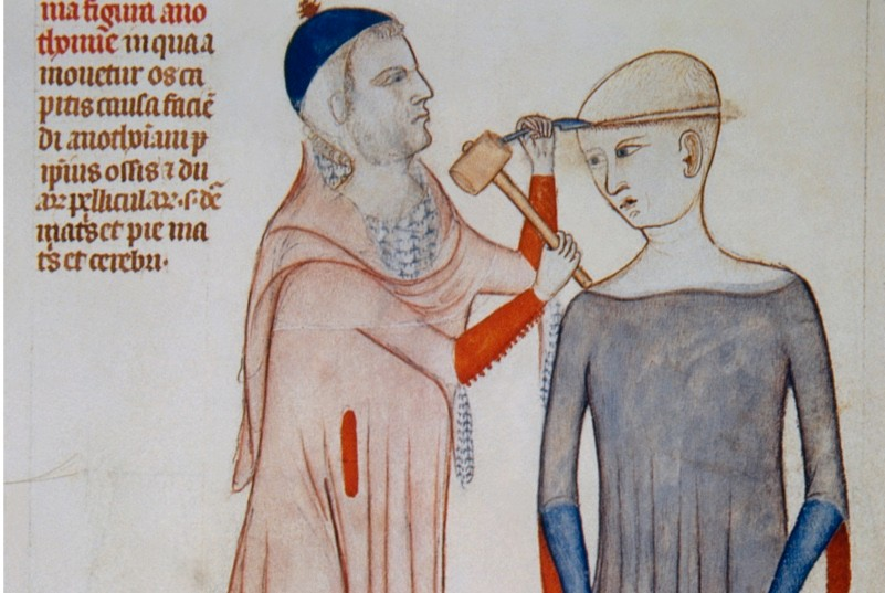 What is trepanning?