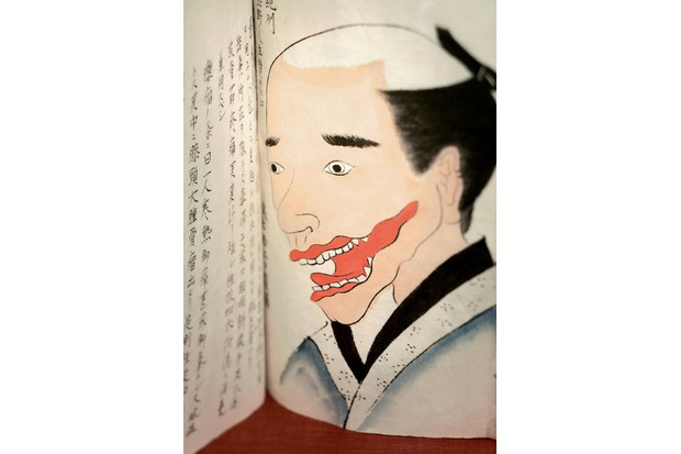 An illustrated manuscript depicting a drawing of a man's face with a red tumour by his mouth to be excised under general anaesthesia by Seishu Hanaoka, c1800. Courtesy of the National Library of Medicine. (Photo via Smith Collection/Gado/Getty Images).
