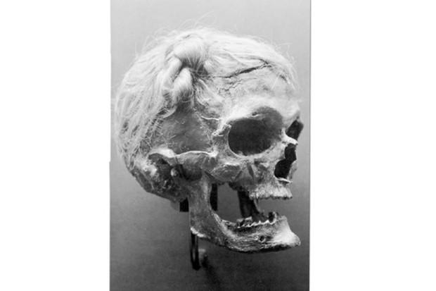 Bog-body-skull-2-4912c93