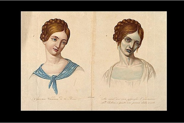 Drawing of a 19th century cholera victim, pictured before and after illness.