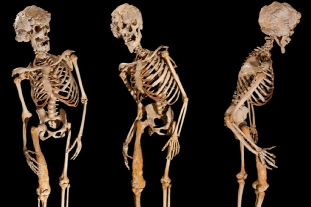 The skeleton of Joseph Carey Merrick (Image Ray Crundwell, Queen Mary University of London)