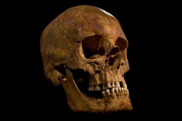 Richard-III-skull-copy-2-99c9eba