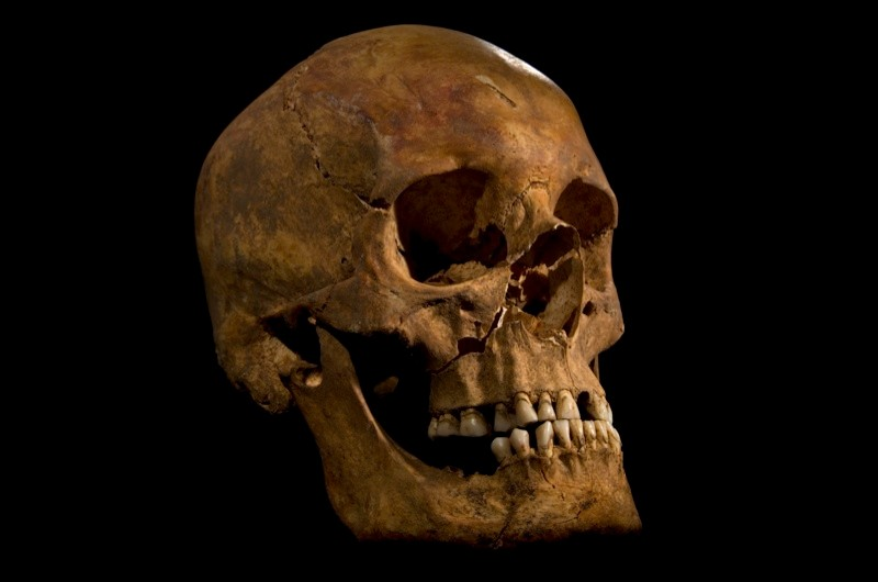 Richard III's skull. (Image by Catriona Gray)
