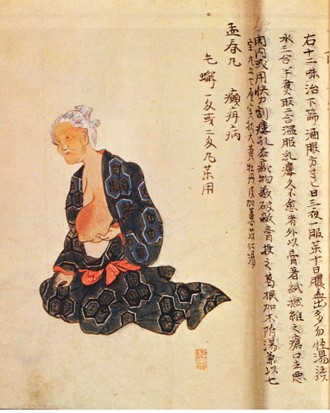 The first surgical treatment of breast cancer performed under general anaesthetic by Seishu Hanaoka (1760-1836) in 1804. (Out of copyright)