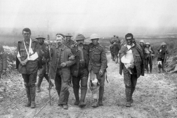 Photograph of the Wounded British Soldiers at the Battle of the Somme. Dated 1916. (Photo by Universal History Archive/UIG via Getty Images)