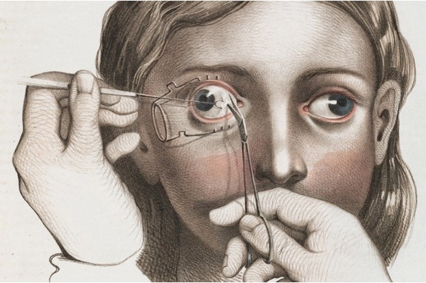 In pictures: 19th-century surgery