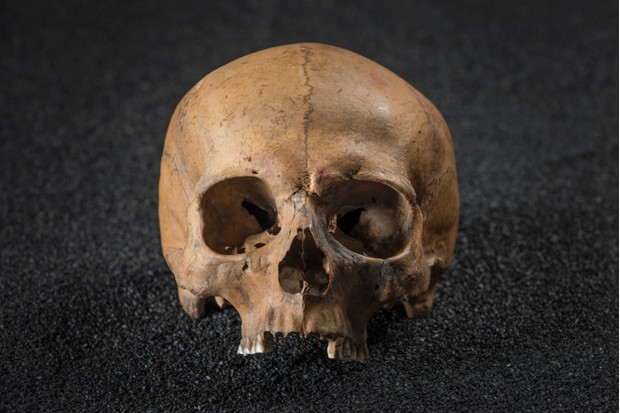 The skull of a Roman man from London