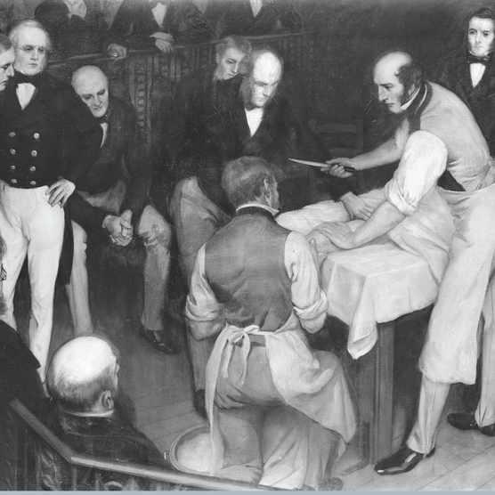 Victorian surgeon Robert Liston during an operation
