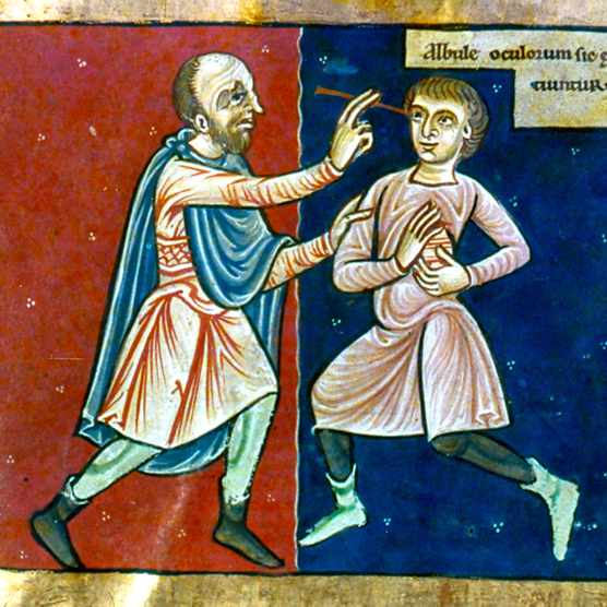 A 12th-century English manuscript shows a surgeon operating on a patient's eye. (Photo by Universal History Archive/Getty Images)