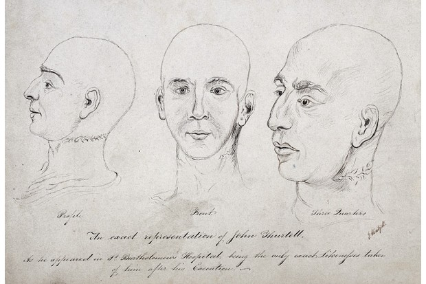 Sketches of the murderer John Thurtell, who was executed in 1824, shows the market left by the noose. His body was dissected at St Bartholomew's Hospital. (Image by Wellcome Images)
