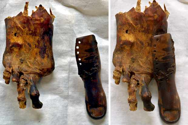 A combo picture of two images taken 13 August 2002 at Cairo Museum shows a foot of a mummy missing its big toe and beside it a prosthetic toe of leather and wood to replace the amputated real one. (Photo by Marwan Naamani/AFP/Getty Images)