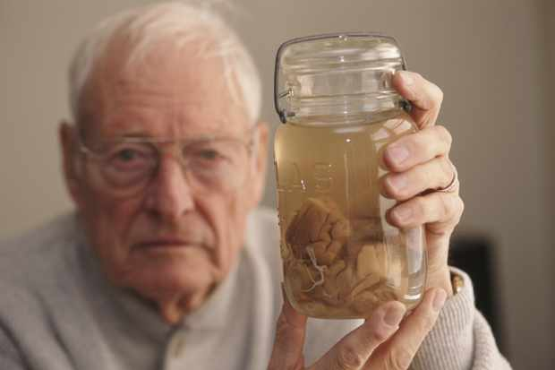 Pathologist Thomas Harvey holds the brain of Albert Einstein in a jar, Kansas, 1994. Harvey, the on-duty pathologist during the eminent physicist's autopsy, removed Einstein's brain and kept most of it stored in two glass jars, refrigerated inside a beer cooler, for more than 20 years. (Photo by Michael Brennan/Getty Images)