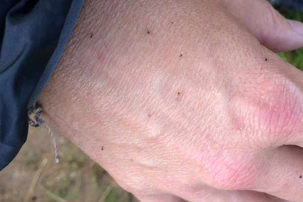 Midges on a hand at Fort William